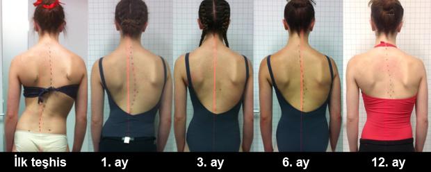 Методи за лечение на сколиоза