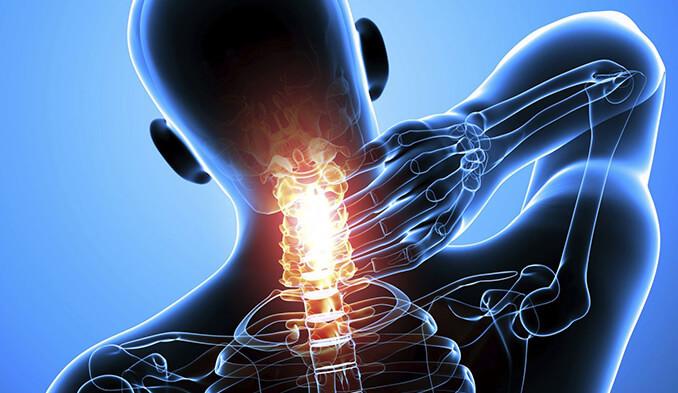 Какви са симптомите при хернията на вратните прешлени? - превю