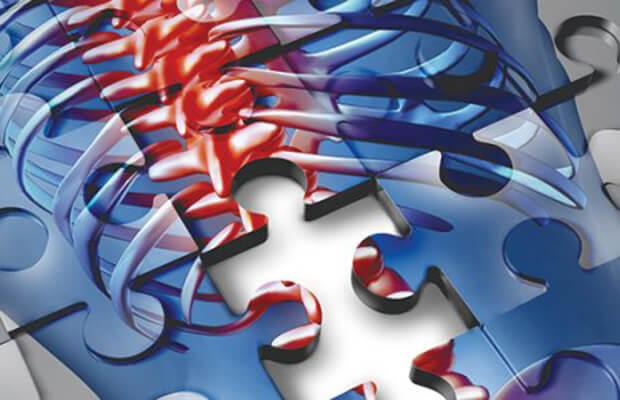 Какво представляват гръбначните заболявания? Гръбначни операции и лечение.