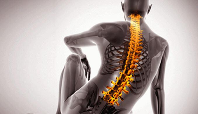 Какво представляват гръбначните заболявания? Гръбначни операции и лечение. - превю