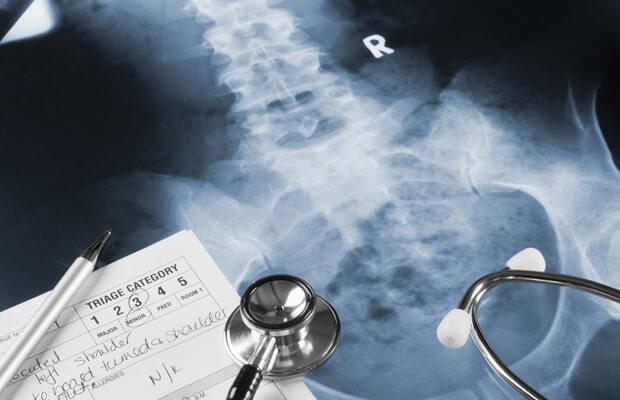 Травма на гръбнака
