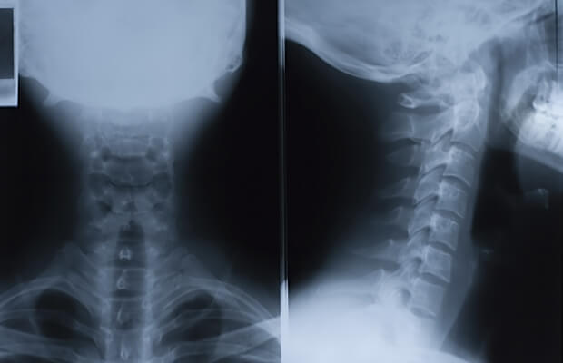Какви са симптомите и лечението на тумори на гръбначния стълб?