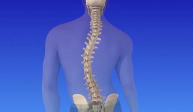 Какво представлява туморът на гръбначния стълб? - превю