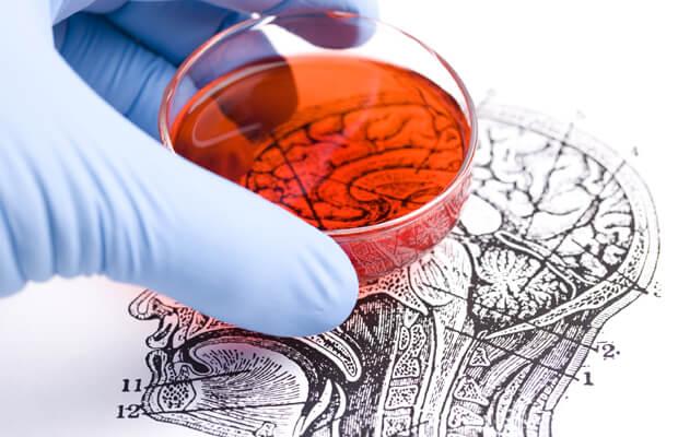 Какви са методите за лечение на тумори на гръбначния мозък?